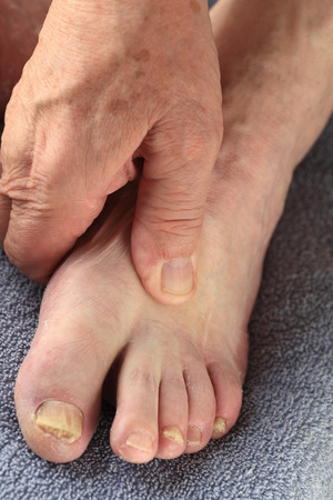 toenail fungus: A senior man with a fungal infection on some of his toes Stock Photo