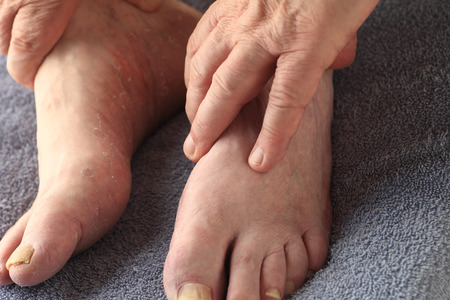 toenail: A mans hands on his feet, one of which has both toenail fungus and the dry, peeling skin of athletes foot Stock Photo