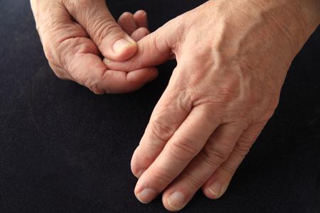 soreness: Older man has an aching thumb.