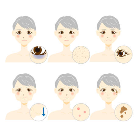 woman with facial skin trouble Illustration