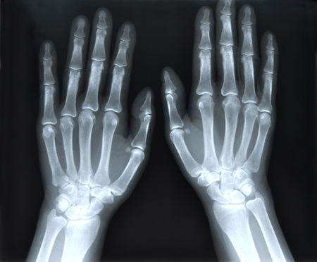X-Ray image of human hands  photo