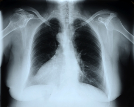 X-Ray Image Of Human Chest  Stock Photo - 23195883