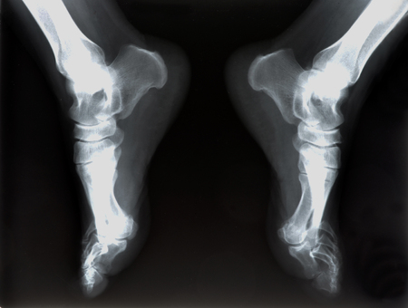 x-ray of foot  Stock Photo - 23195899