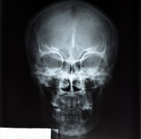 radiological: skull x-rays image