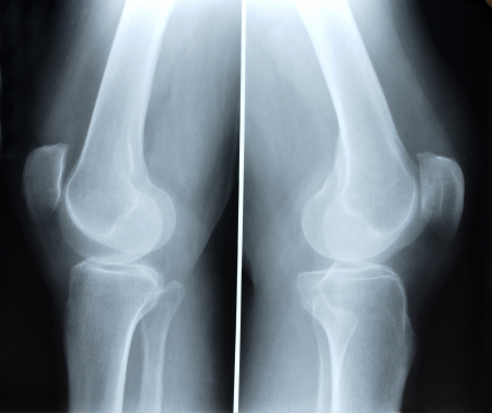 X-ray picture showing knee joints  photo