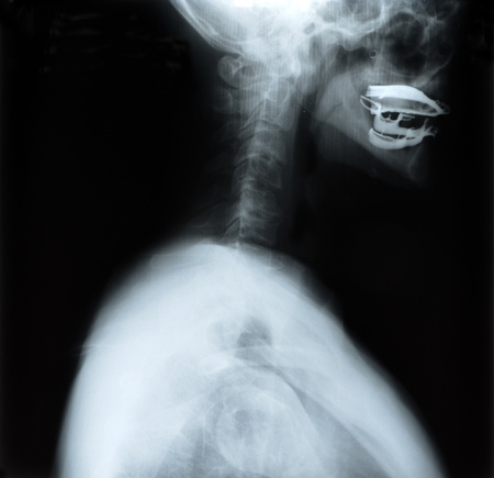 radiological: detail of neck and head x-ray image