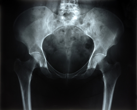 radiograph of the pelvis photo