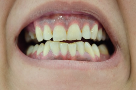 Person showing very ugly broken and yellow teeth