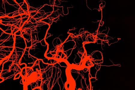 arteries: Blood