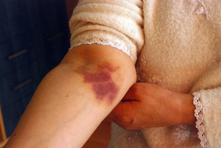 harming: picture of a  scald burn blister on forearm,on woman hand Stock Photo