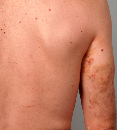 stabs: Picture of a beaten man torso Stock Photo