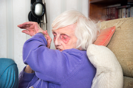 A blind 90 year old lady,with severe macular de-generation can only tell the time by listening to her talking watch. Stockfoto