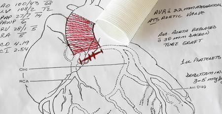 心臓外科医の開胸手術図大動脈と大動脈弁置換術