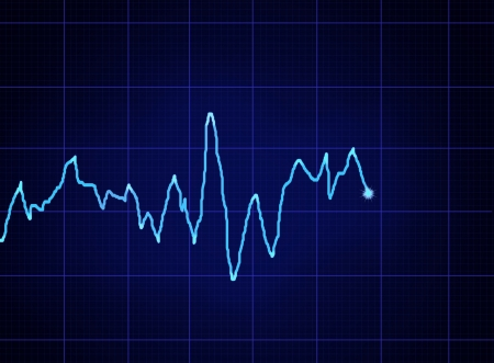 glowing blue ECG graph on dark grid photo