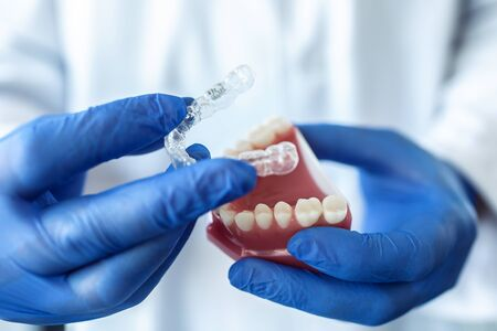 Close-up of the doctor's hands in blue gloves hold an artificial model of the jaw with invisible braces. The dentist shows an example of tooth alignment.  Standard-Bild