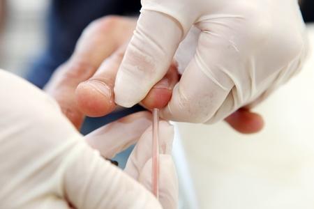 Blood Sugar Test photo