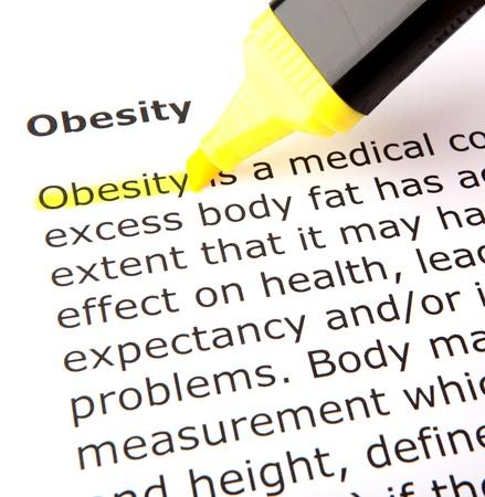 obese women: Obesity