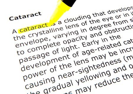 cataract: cataract Stock Photo