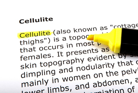 Cellulite - Text highlighted with felt tip pen. photo