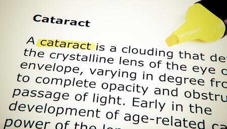 Cataract photo