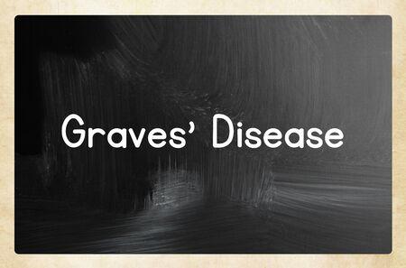 graves disease Zdjęcie Seryjne
