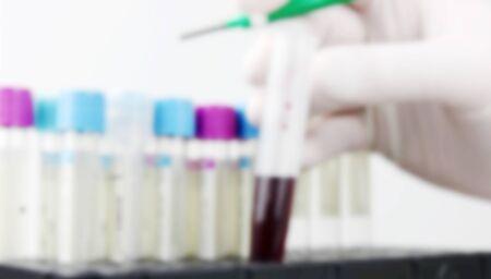 Blurred image of Coronavirus disease (COVID-19).