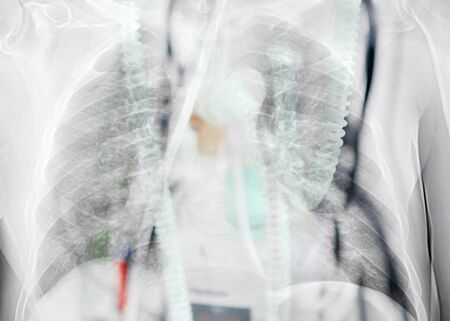 Double exposure of x-ray image of lung with pneumonia and ICU medical ventilator