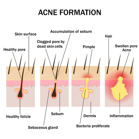 cuticle: Illustration of acne formation on the human skin