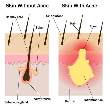 skin problem: Illustration of the skin with and without acne