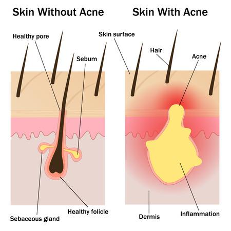 pus: Illustrazione della pelle con e senza l'acne