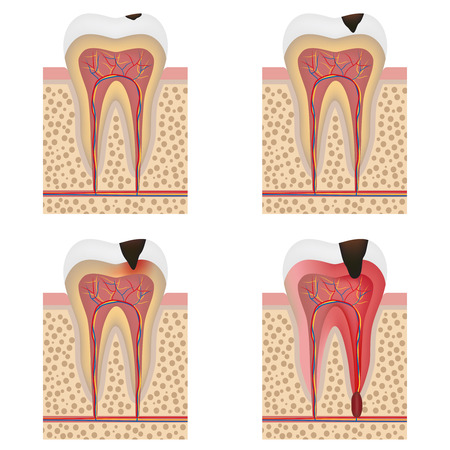 Stages of tooth decay illustration. Development of dental caries illustration. Ilustração