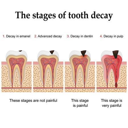 Kariesbildung schrittweise dental plaque forming und schließlich Karies und Hohlraum