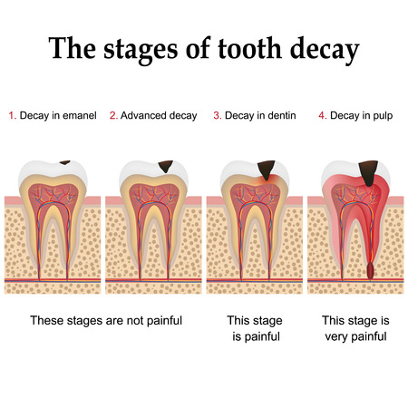 pulp: Tooth decay formation step by step, forming dental plaque and finally caries and cavity