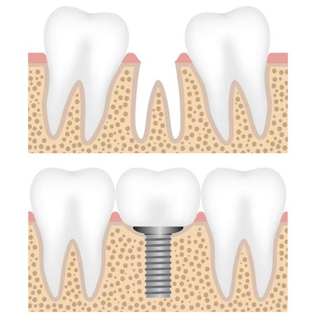 Illustration showing the dental implant with crown Illusztráció