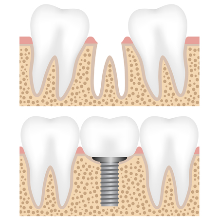 Illustration showing the dental implant with crown Illustration