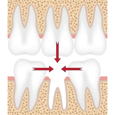 tooth: Teeth are moving to fill empty space from missing tooth.