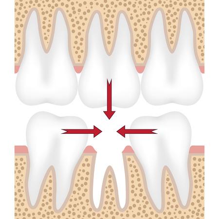 Zęby są ruchome, aby wypełnić puste miejsce z brakujących zębów.