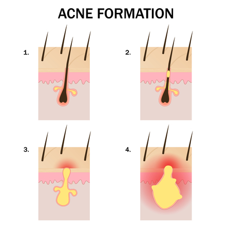 Stages of acne formation on the human skin