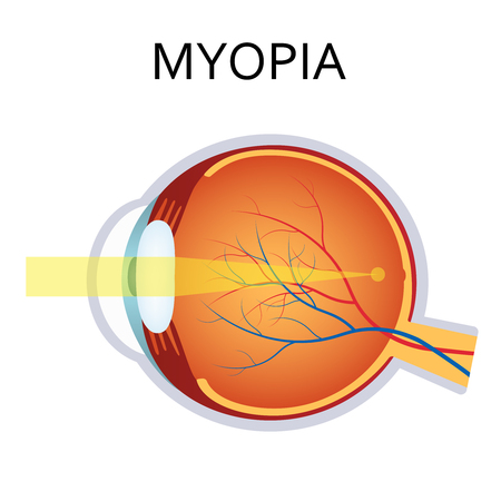 Myopia is being short sighted. Far away object seems blurry. Detailed anatomy of the eye. Illustration