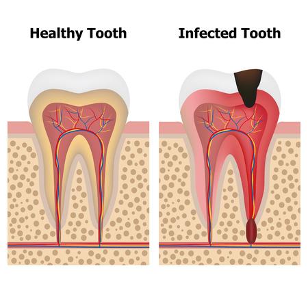 pulpitis 및 건강 한 치아를 보여주는 그림. 일러스트