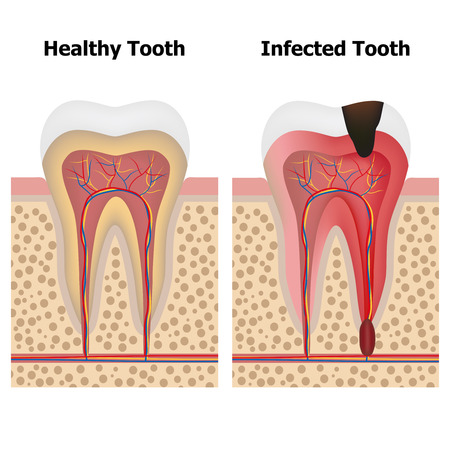 Illustration showing pulpitis and healthy tooth.