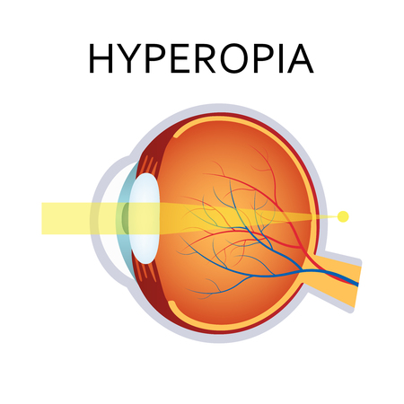 Hyperopia eyesight disorder. Hyperopia is being farsighted. Anatomy of the eye, cross section. Illustration