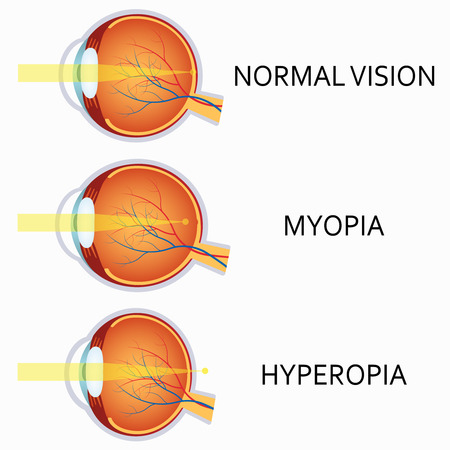 farsighted: Optical human eye defects. Myopia and hyperopia.  Anatomical structure of human eye.