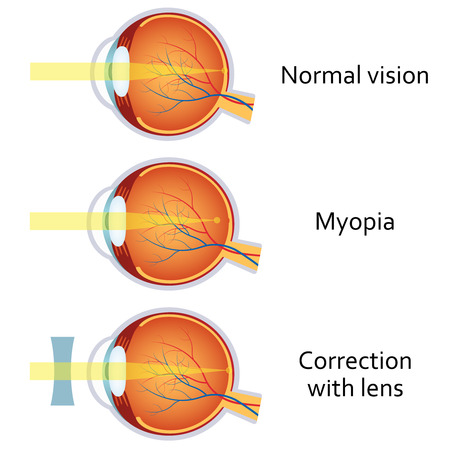 shortsighted: Myopia and myopia corrected by a minus lens. Eye vision disorder.