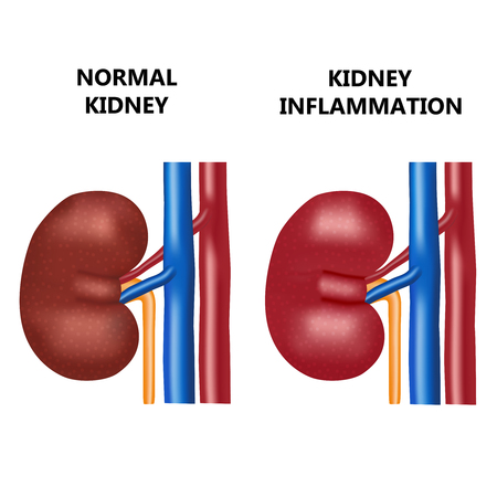 cyst: Healthy kidney and kidney infection with the virus.