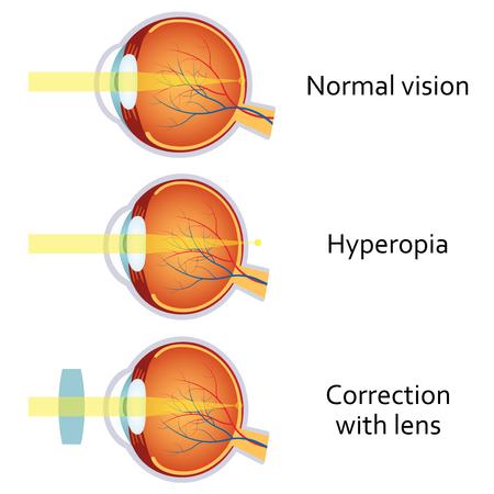 hyperopia: Hyperopia and Hyperopia corrected by a plus lens. Eye vision disorder.
