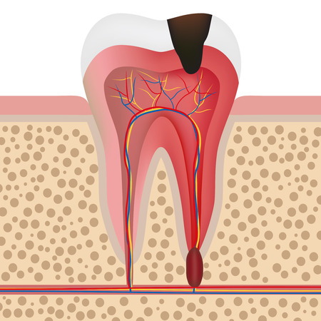Vector illustration showing infected tooth with pulpitis. 일러스트