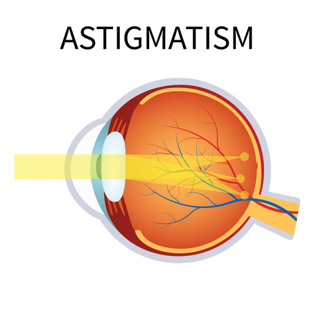 eye cross section: Illustration of astigmatism. Astigmatism is a blurred vision. Anatomy of the eye, cross section.