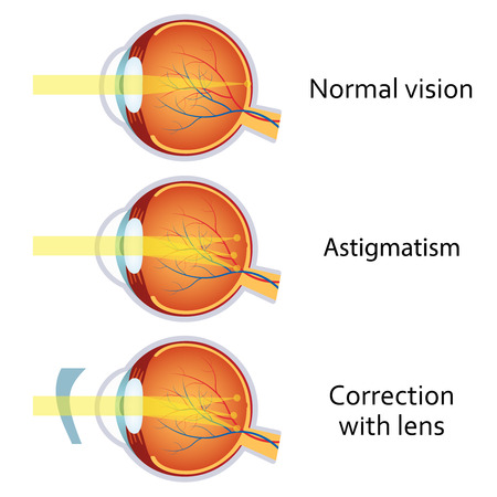eye cross section: Astigmatism corrected by a cylindrical lens. Eyesight problem, blurred vision. Anatomy of the eye, cross section. Illustration