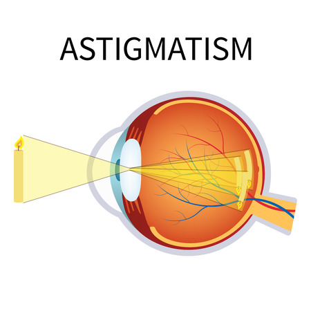 blurred vision: Illustration of astigmatism. Astigmatism is a blurred vision. Anatomy of the eye, cross section.